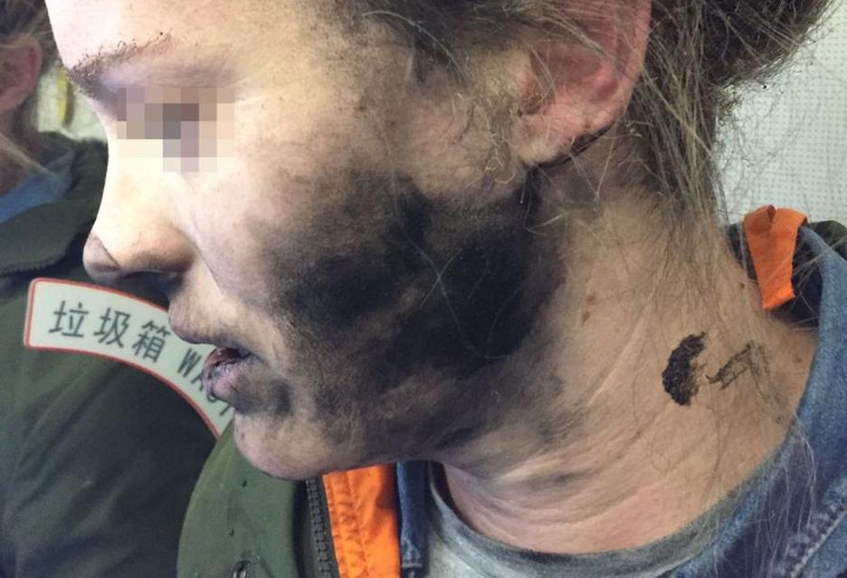 Podróżująca samolotem kobieta poparzona przez eksplodujące słuchawki